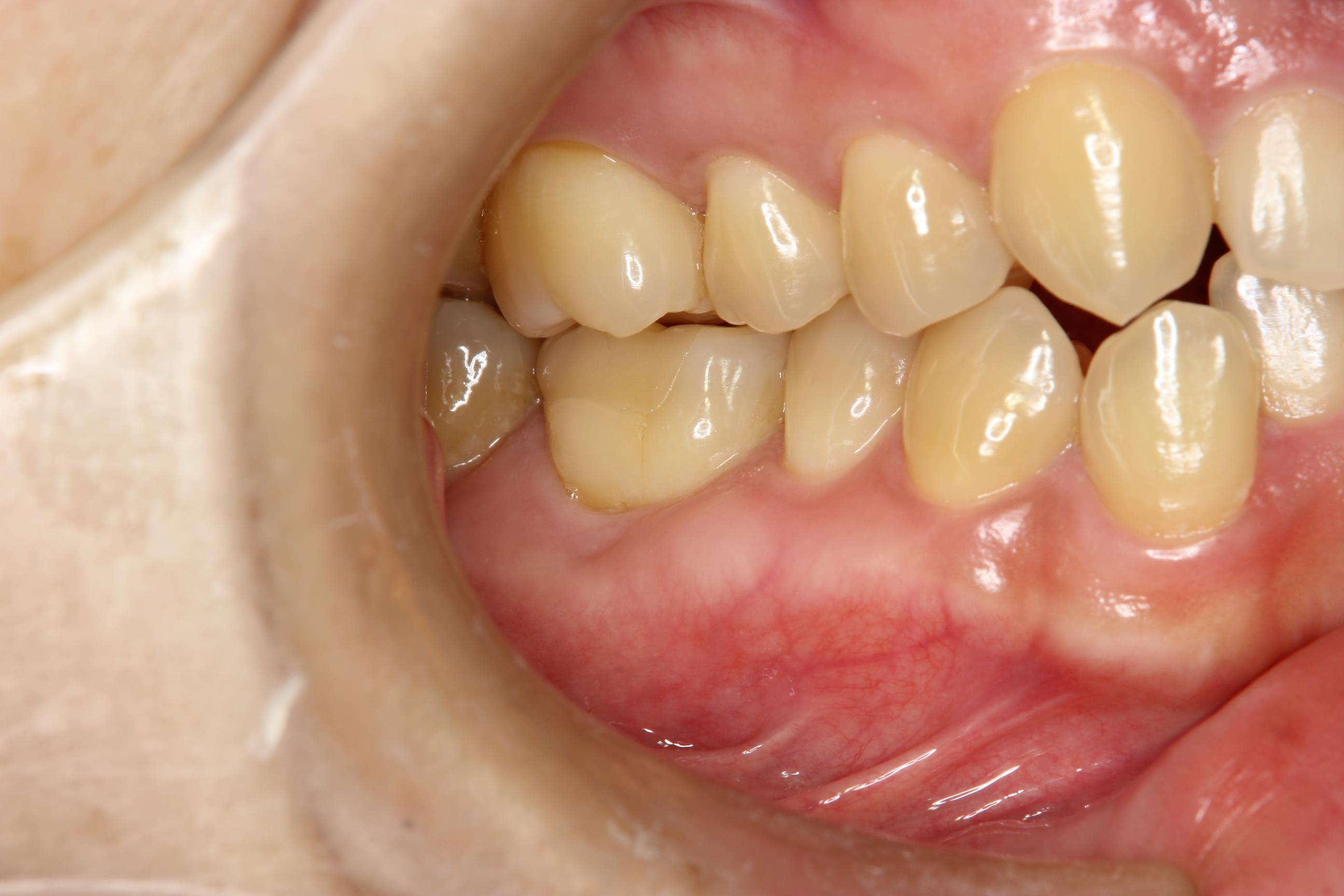 奥 の 歯茎 が 腫れる